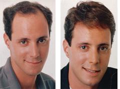 תוספת שיער  טבעי לגבר