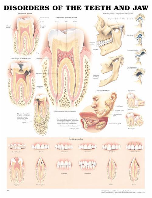 """פוסטר אנטומיה - בעיות של השיניים והלסת 50X70 ס""""מ"""
