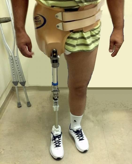 pelvis prosthesis 2