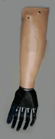 B- bionic prosthesis