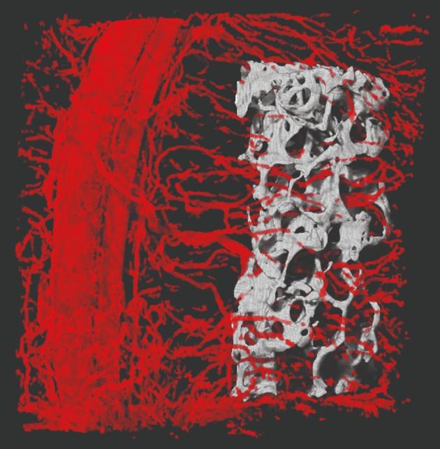 סריקה תלת-ממדית הממחישה את חדירת כלי הדם אל תוך העצם המושתלת בתוך מתלה הרקמה שנוצר