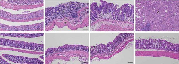 רירית המעי הגס של עכבר תחת מיקרוסקופ. הרירית של עכברים רגילים (למעלה, משמאל) משתבשת עם התקדמות הדלקת (למעלה, אמצע) ומקדמת את התפתחות הסרטן (למעלה, ימין). לעומת זאת, בעכברים ללא HSF1 (למטה, שמאל), לא מתפתחת דלקת (למטה, אמצע וימין)