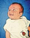 דף מידע בנושא טורטיקוליס שרירי מולד
