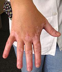 ויטיליגו - מחלה אוטואימונית ניתבת לטיפול בהומאופתי