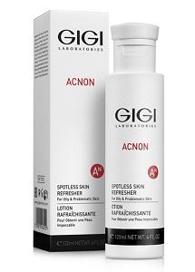 Acnon spotless skin refresher gigi