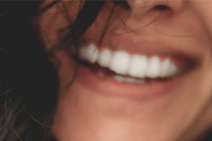 השתלת שיניים ביום אחד