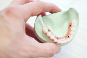 כתר לשיניים מהיר תל אביב