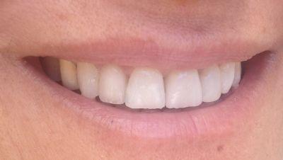 עיצוב קוסמטי לשיניים בתל אביב