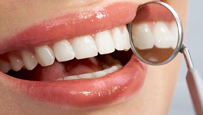 השלמת שן