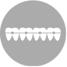 יישור שיניים (אורתודונטיה)