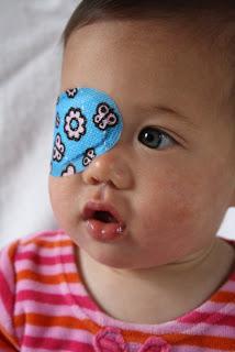 תינוק עם עין עצלה מטופל ברטיה מודבקת לעין