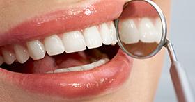 ציפוי שיניים למינייט
