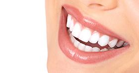 השלמת שיניים