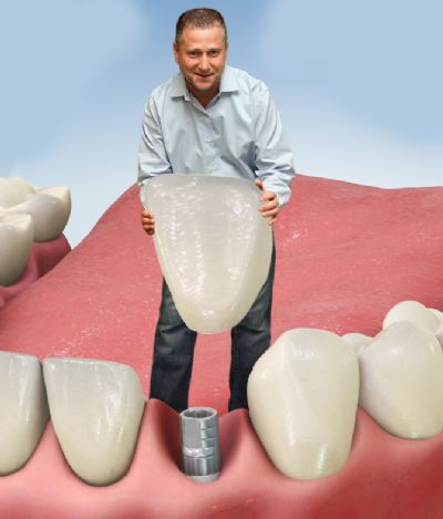 """ד""""ר טנצר – הרבה יותר מרופא שיניים ברעננה"""
