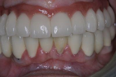 רופא שיניים ברעננה