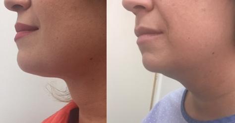 המסת שומן  ומתיחת עור באזור קו לסת וצוואר