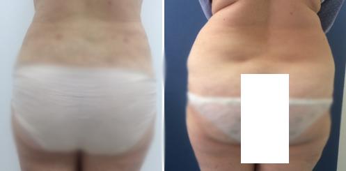 שאיבת שומן ומתיחת עור באזור המותניים והגב התחתון