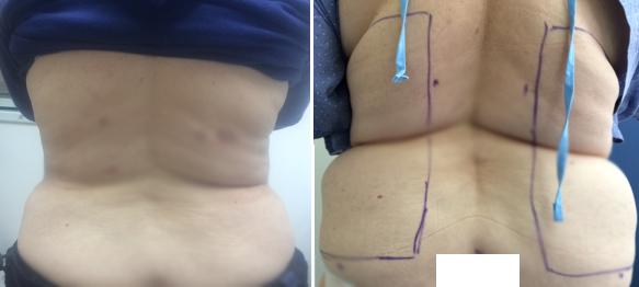 שאיבת שומן ומתיחת עור באזור הגב והמותניים