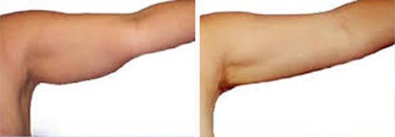 שאיבת שומן מהזרועות
