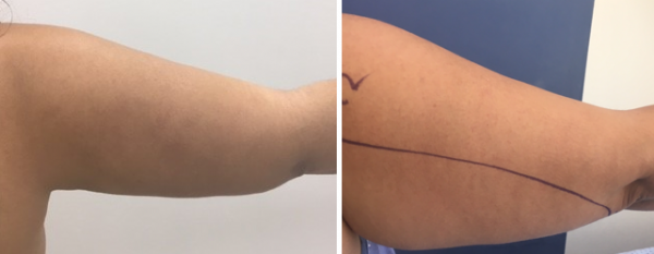 המסת שומן, שאיבת שומן ומתיחת עור באזור הזרועות