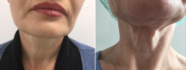 לפני ואחרי - המסת שומן  ומתיחת עור באזור צוואר