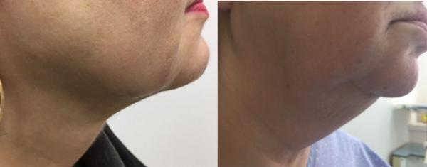 לפני ואחרי - המסת שומן, שאיבת שומן ומתיחת עור באזו