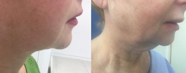 המסת שומן  ומתיחת עור באזור הסנטר/הצוואר וקו הלסת