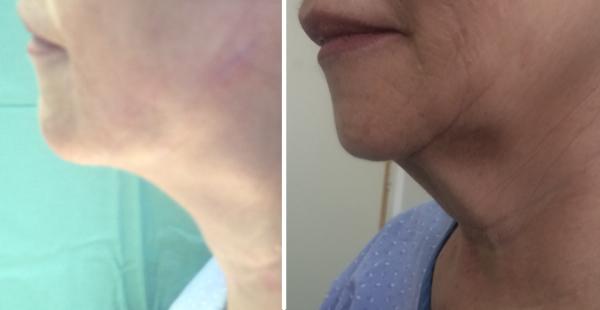 המסת שומן, מתיחת עור מאזור הסנטר/הצוואר