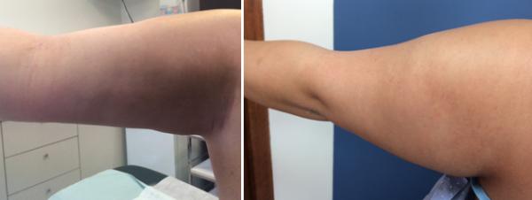 טיפול בשיטת בודי טייט - זרועות