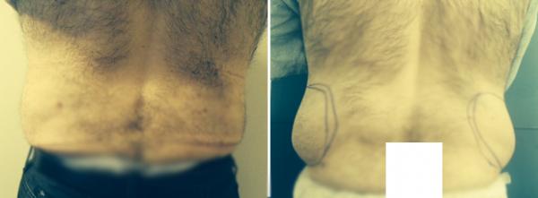 שאיבת שומן ומתיחת עור באזור המותניים אצל גבר
