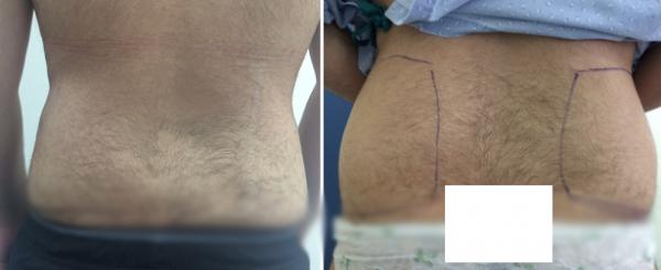 שאיבת שומן ומתיחת עור מאזור מותניים אצל גבר
