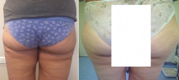 המסת שומן , שאיבת שומן מאזור ירך חיצוני