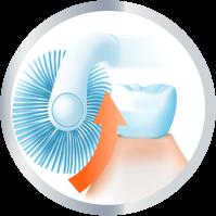 ניקוי שיניים נכון מהחניכיים כלפי מעלה - צוות-גדרון