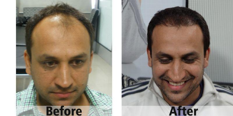 השתלת שיער לפני ואחרי
