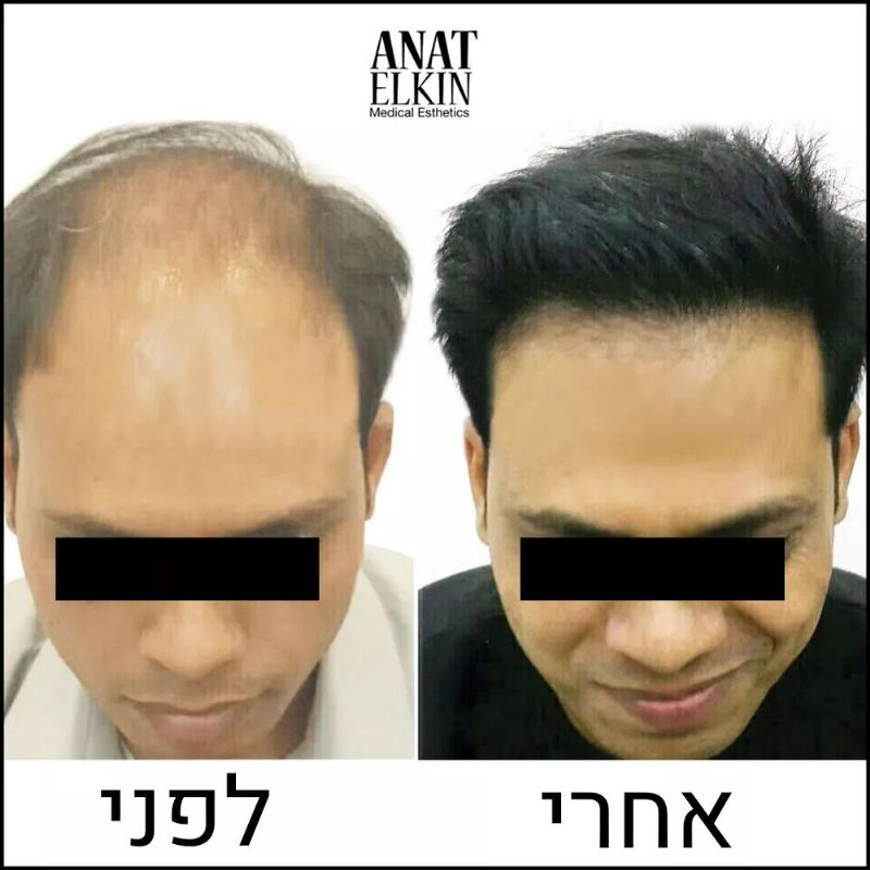 השתלת שיער בארץ המלצות