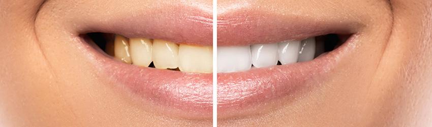 שנטיב - הלבנת שיניים