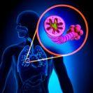 ברונכיטיס COPD